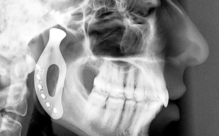 An xray of the prosthetic jaw